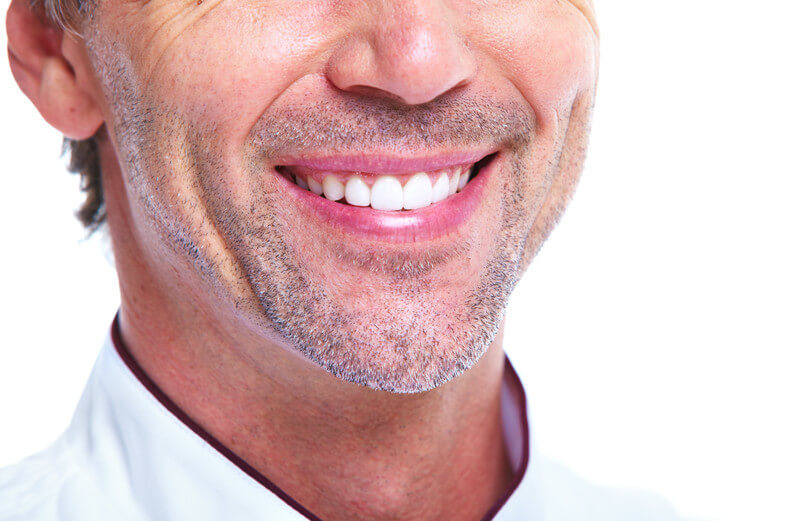 porcelain veneers FAQs